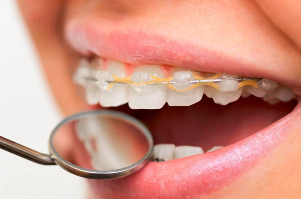 ¿Qué es una ortodoncia?