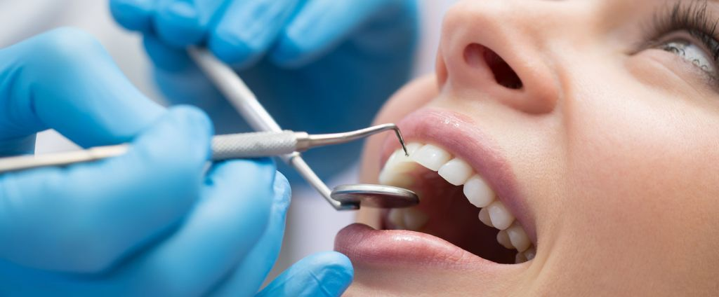 Tratamiento dental Adeslas