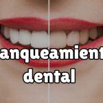 Precios de los blanqueamientos dentales en Adeslas