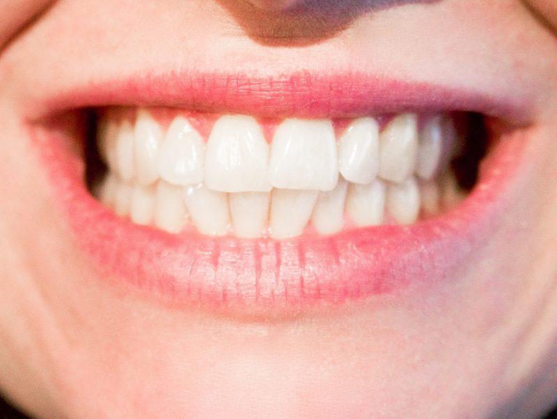 Precio Endodoncia Adeslas 1