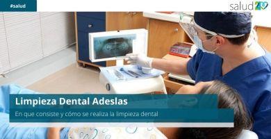 Limpieza Dental Adeslas